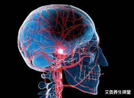 脑卒中的艾灸疗法-中风要艾灸哪几个穴位?